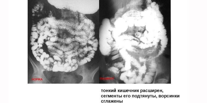 Рентгеновские снимки тонкой кишки в норме и с патологией