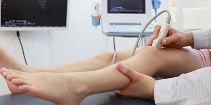 Пациентка на дуплексном сканировании вен
