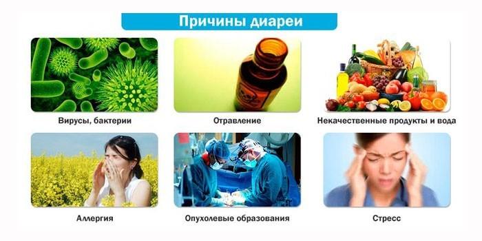 Причины расстройства желудка