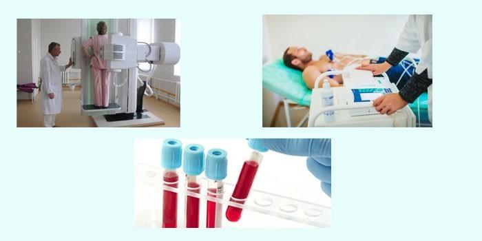 Рентген, ЭКГ и анализ крови