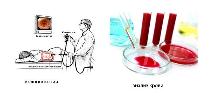 Колоноскопия и анализ крови