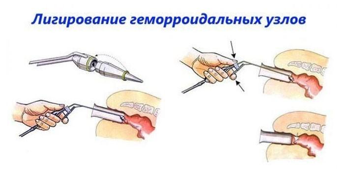 Этапы проведения лигирования геморроидальных узлов