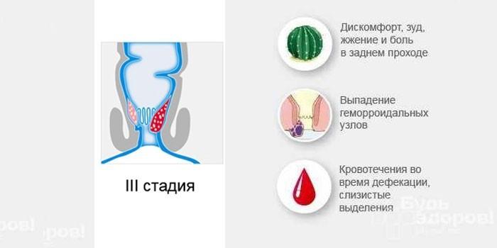 Симптомы третьей стадии