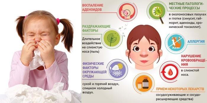 Причины возникновения ринита у детей
