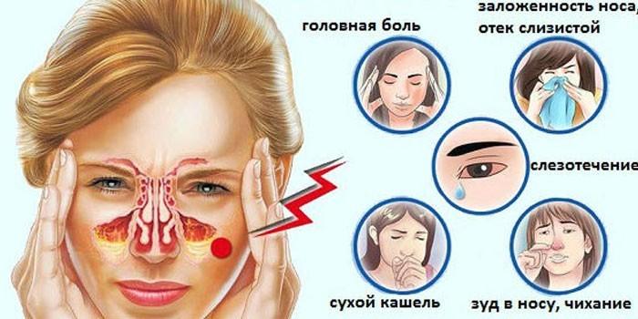Проявления аллергического ринита