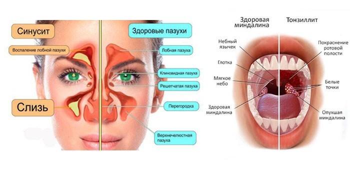 Синусит и тонзиллит