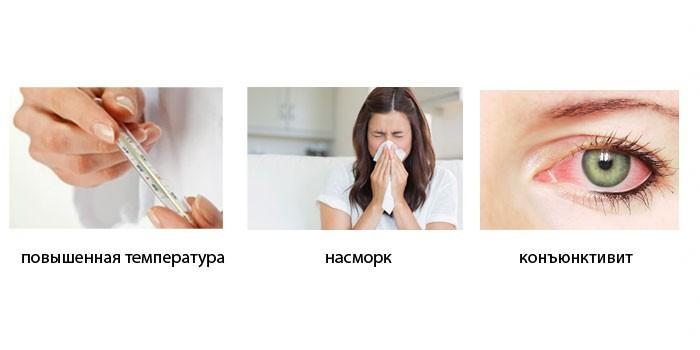 Симптомы инфекционной формы заболевания