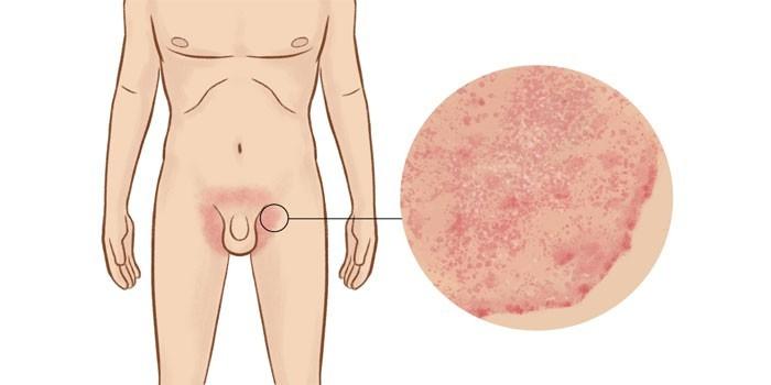 Сыпь в интимной зоне при венерических заболеваниях