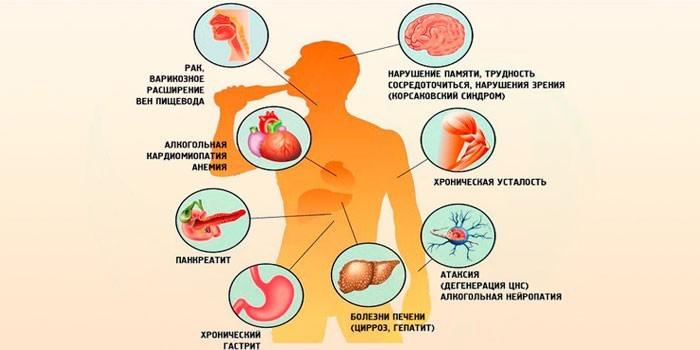 Влияние спиртного на организм