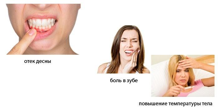 Симптомы внутреннего свища
