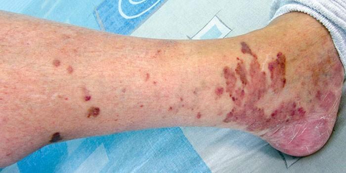 Проявления на коже ноги