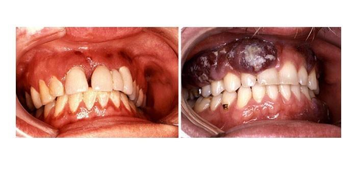 Проявления на слизистой рта