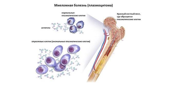 Плазоцитома