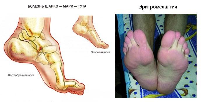 Редкие причины жжения в ногах