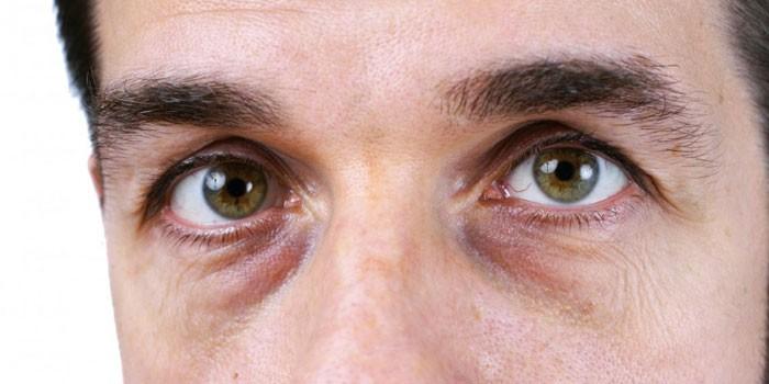 Синяки под глазами у мужчины