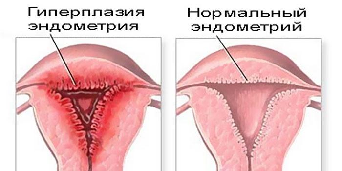 Гиперпластические процессы эндометрия