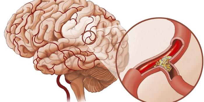 Ишемический инсульт мозга