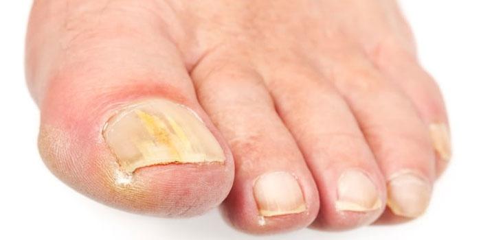Ногти на ногах, пораженные грибком