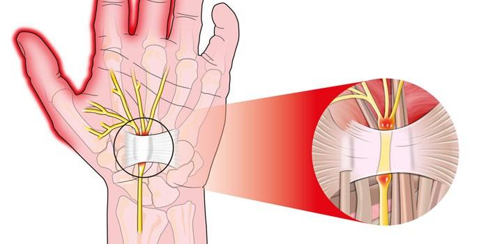 Схема развития синдрома запястного канала