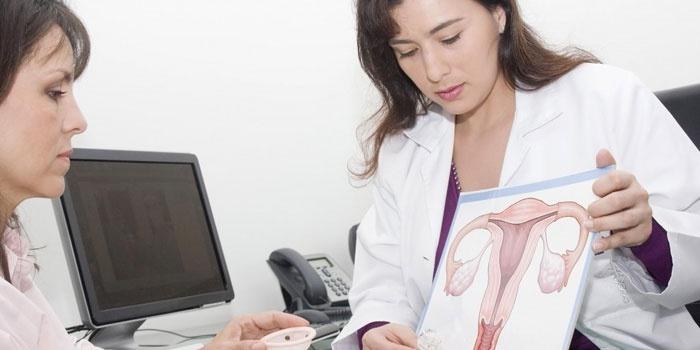 Врач объясняет женщине строение женских репродуктивных органов
