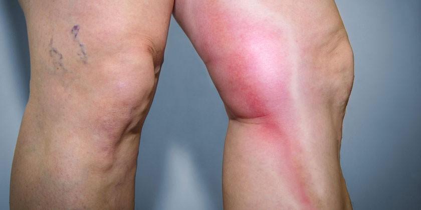 Воспаление вены на ноге
