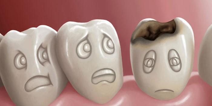 Рисунок кариеса зубов
