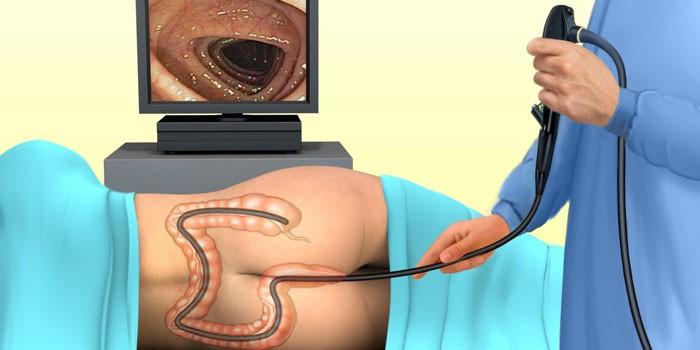 Схема колоноскопии кишечника