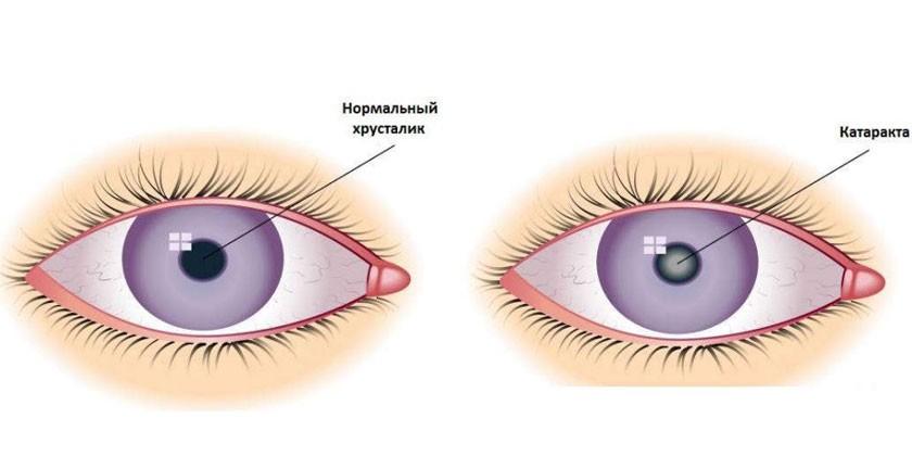 Нормальный хрусталик и хрусталик при катаракте