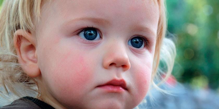 У ребенка  красные щеки