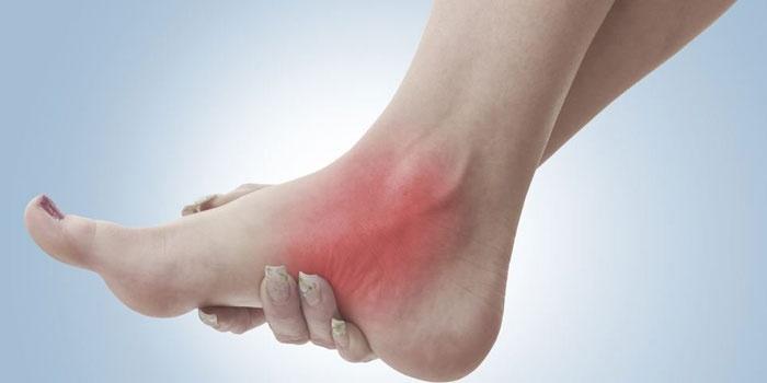 Боль и жжение у девушки в ноге