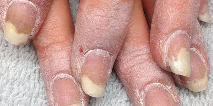 Начальная стадия онихомикоза под ногтевой пластиной
