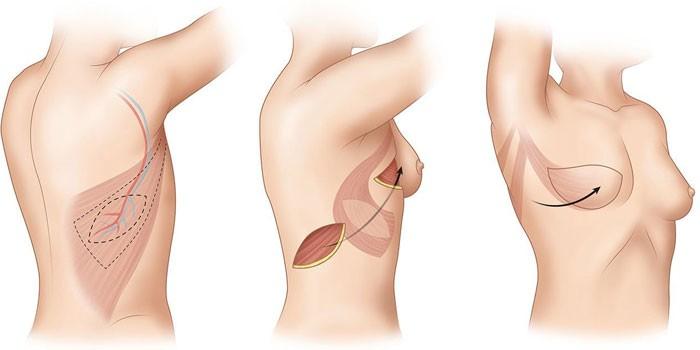 Схема реконструкции груди с использованием ТДЛ-лоскута
