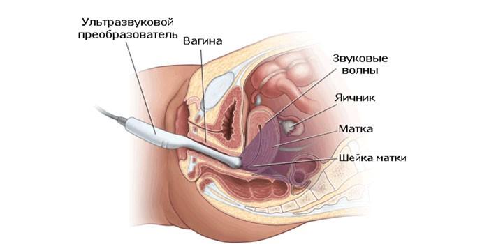 Схема трансвагинальной УЗИ-диагностики