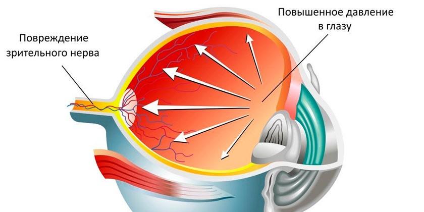 Глаукома на схеме