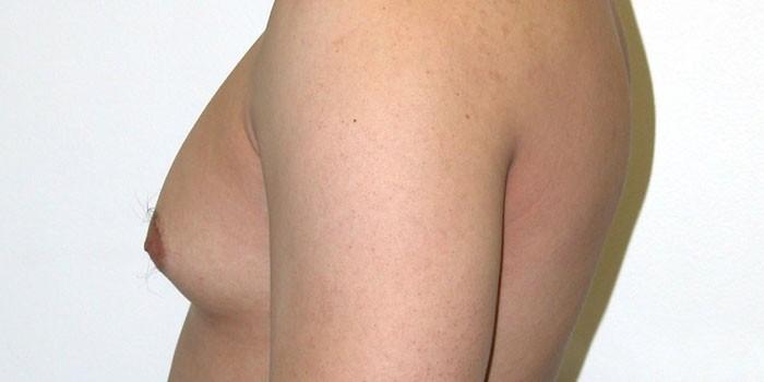 Увеличенная молочная железа у мужчины