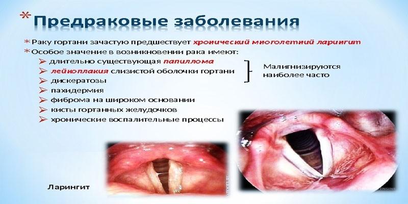 Причины рака горла