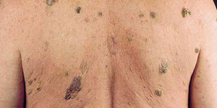 Папилломы базальноклеточные на спине