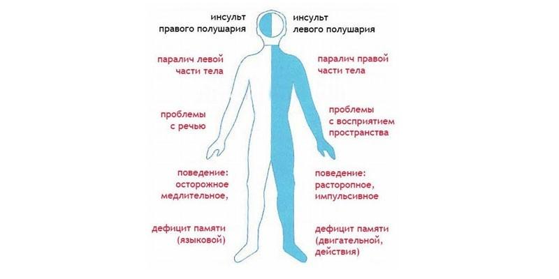 Разница между последствиями инсультов
