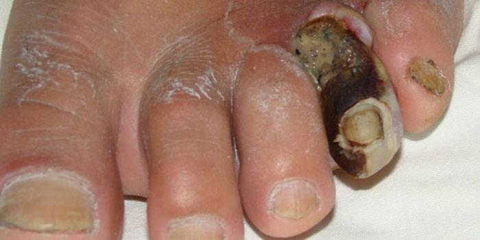 Гангрена пальца ноги