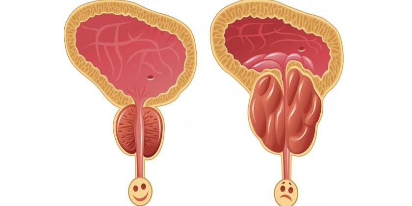 Здоровая и больная простата