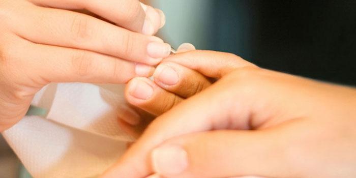 Врач проводит процедуру лечения грибка ногтей на руках