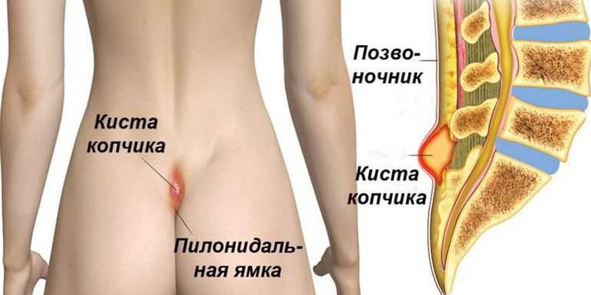 Схема развития копчиковой кисты