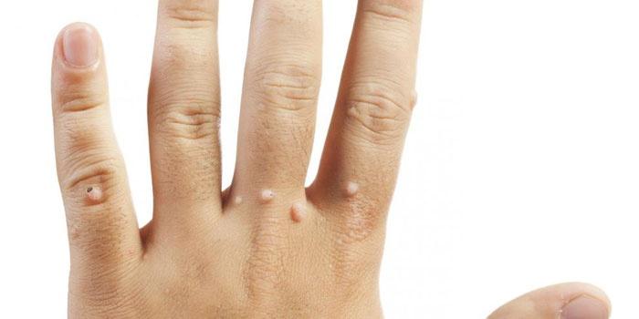 Бородавки на коже руки