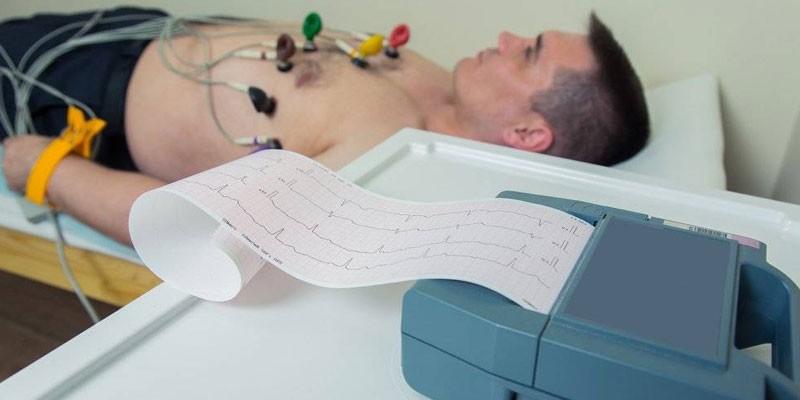 Мужчине делают электрокардиограмму