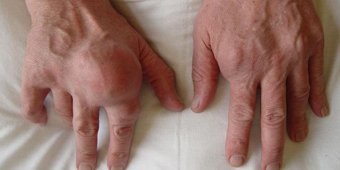 Подагрический артрит в стадии обострения