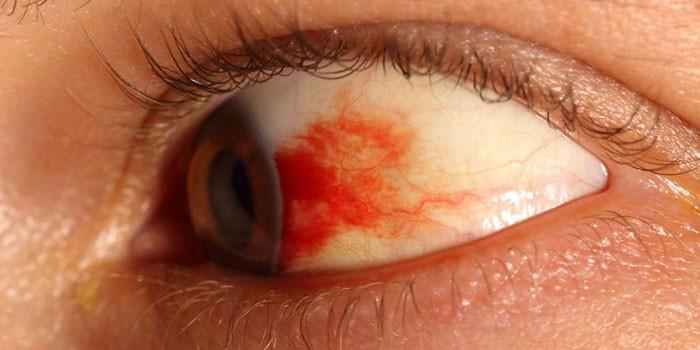 Кровоизлияние в сетчатке глаза