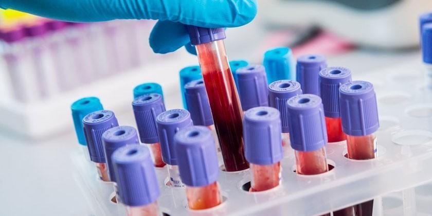 Анализы крови в пробирке