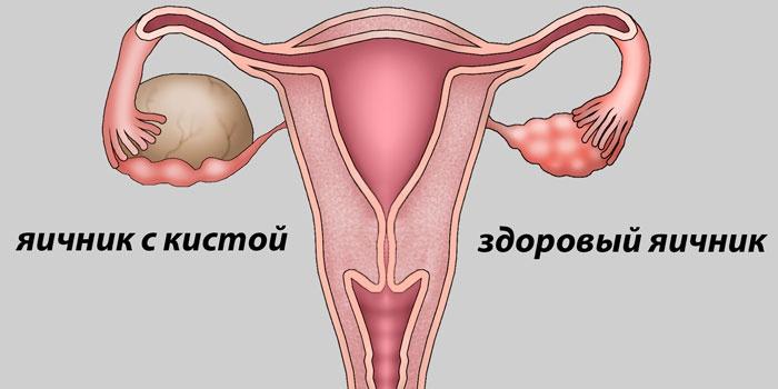 Здоровый яичник и яичник с кистой