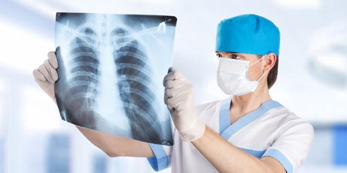Меди рассматривает рентгеновский снимок