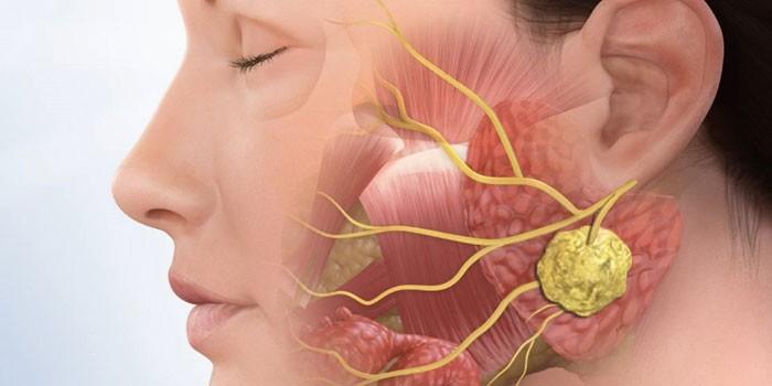 Абсцесс тройничного нерва